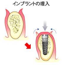 implant_11