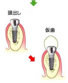 implant_12