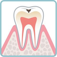 小さい虫歯の治療