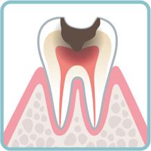 大きい虫歯の治療