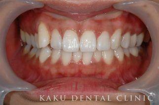 歯肉のホワイトニング症例1