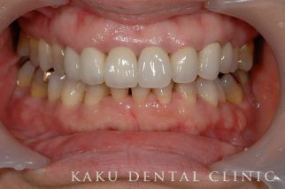 歯周形成外科症例1