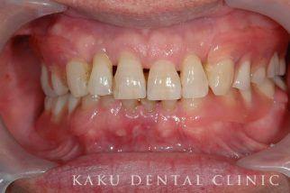 入れ歯症例1