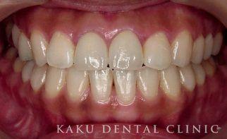 歯のホワイトニング症例2