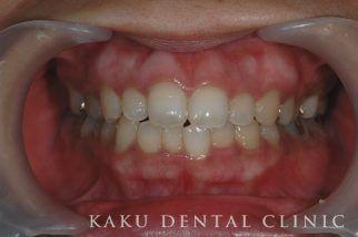歯肉のホワイトニング症例2
