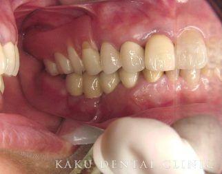 入れ歯症例2