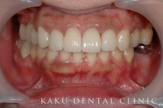 歯周形成外科症例2