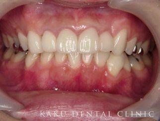 歯周形成外科症例3
