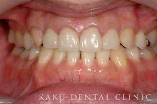 歯周形成外科症例4