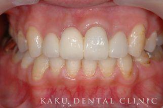 歯周形成外科症例5